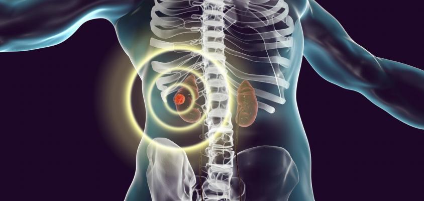 Kidneys The Bladder Work Together To Remove Toxins