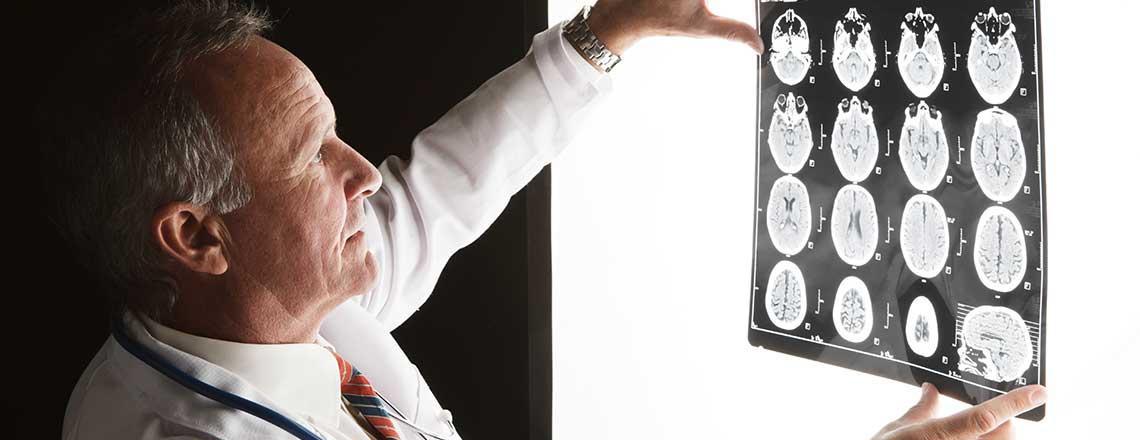 Neurology | Crystal Run Healthcare